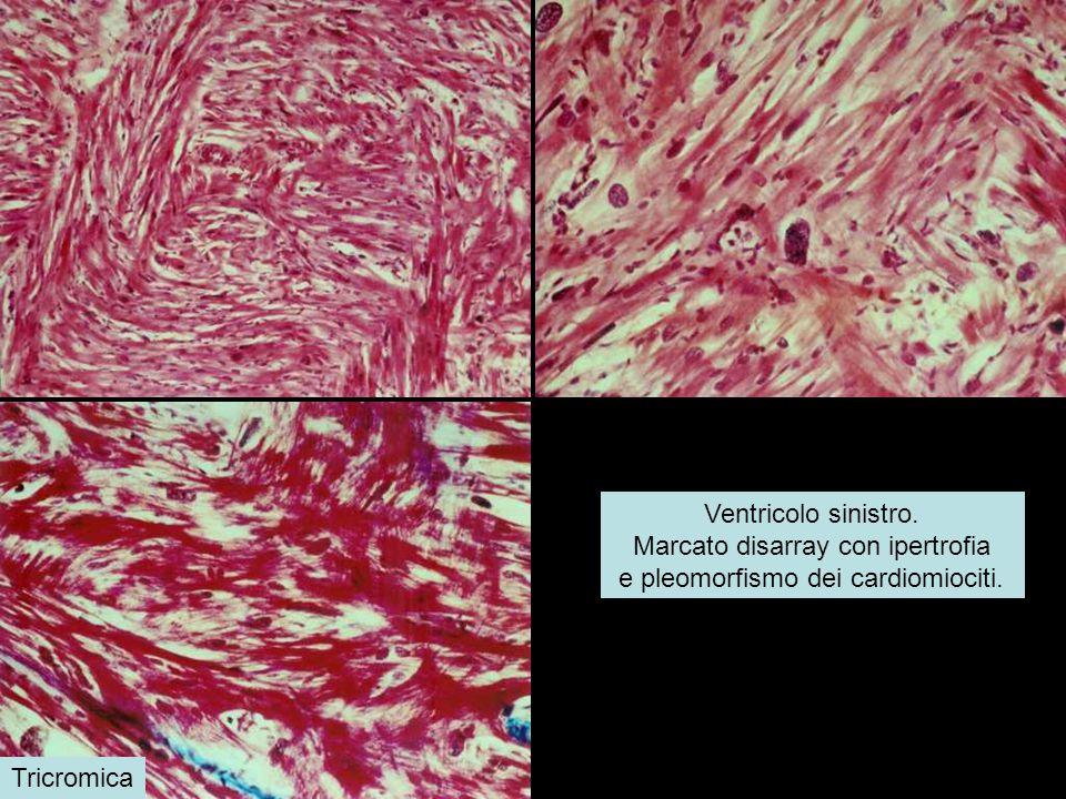 Marcato disarray con ipertrofia e pleomorfismo dei cardiomiociti.