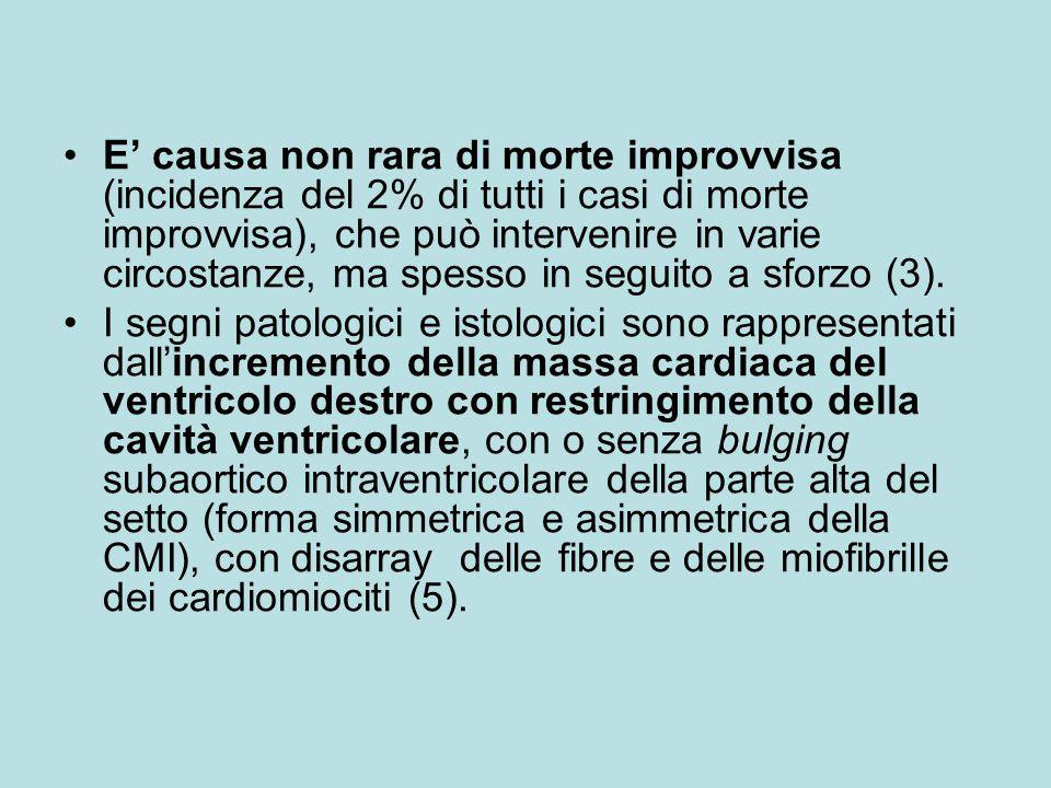 E' causa non rara di morte improvvisa (incidenza del 2% di tutti i casi di morte improvvisa), che può intervenire in varie circostanze, ma spesso in seguito a sforzo (3).