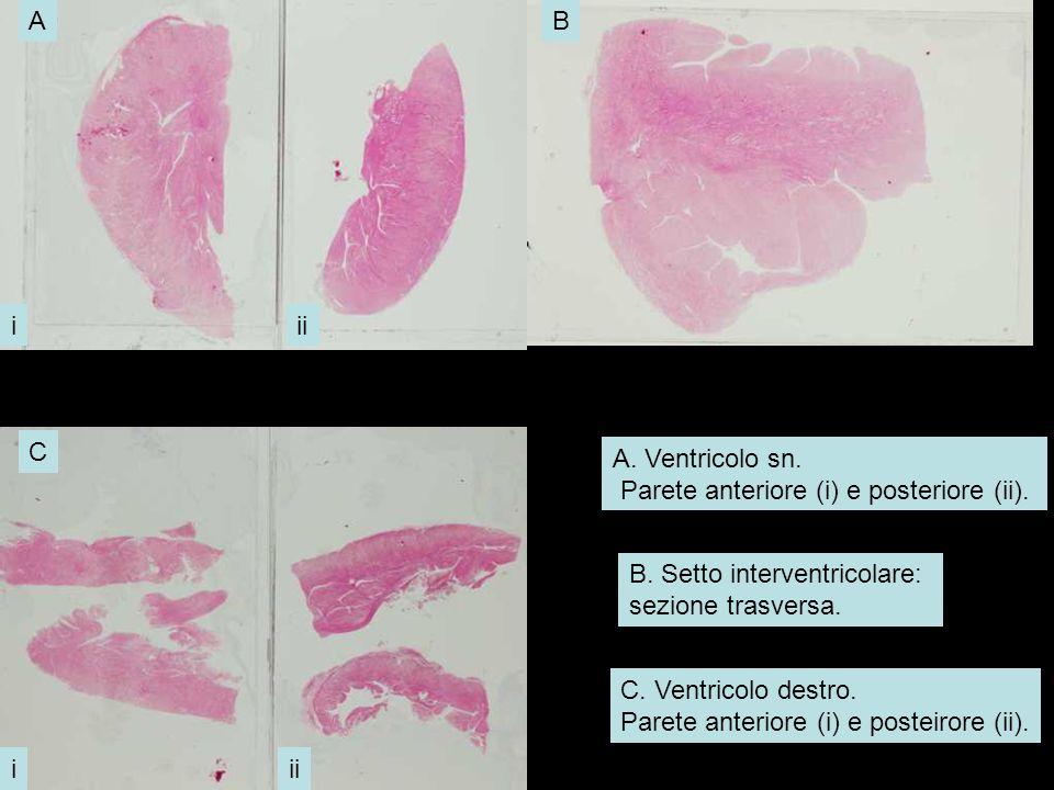 A. Ventricolo sn. Parete anteriore (i) e posteriore (ii). B. Setto interventricolare: sezione trasversa.