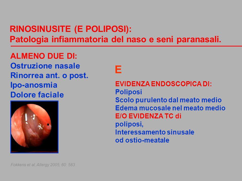 E RINOSINUSITE (E POLIPOSI):