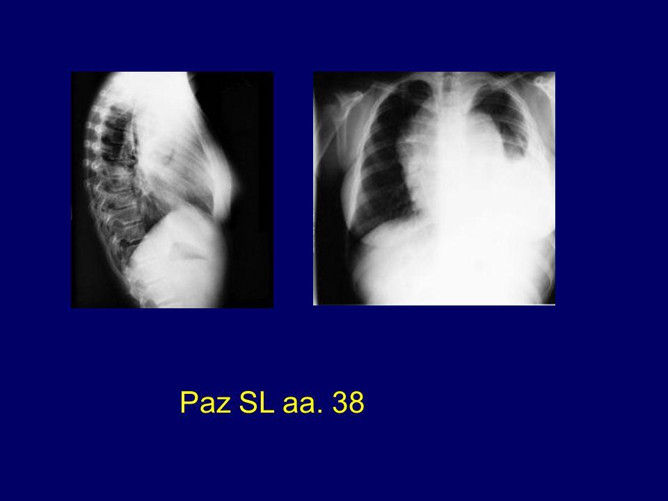Paz SL aa. 38