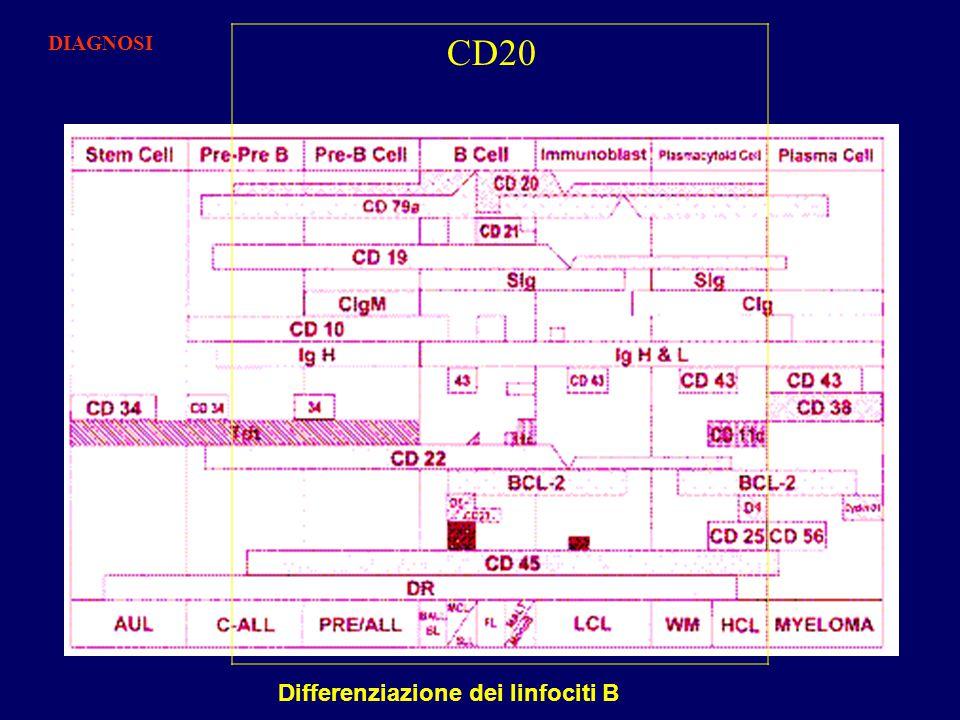 DIAGNOSI CD20 Differenziazione dei linfociti B
