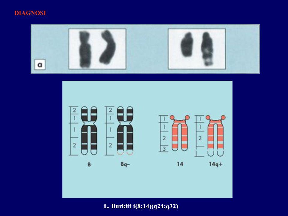 DIAGNOSI L. Burkitt t(8;14)(q24;q32)