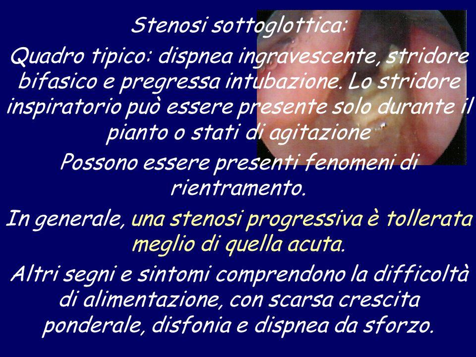 Stenosi sottoglottica: