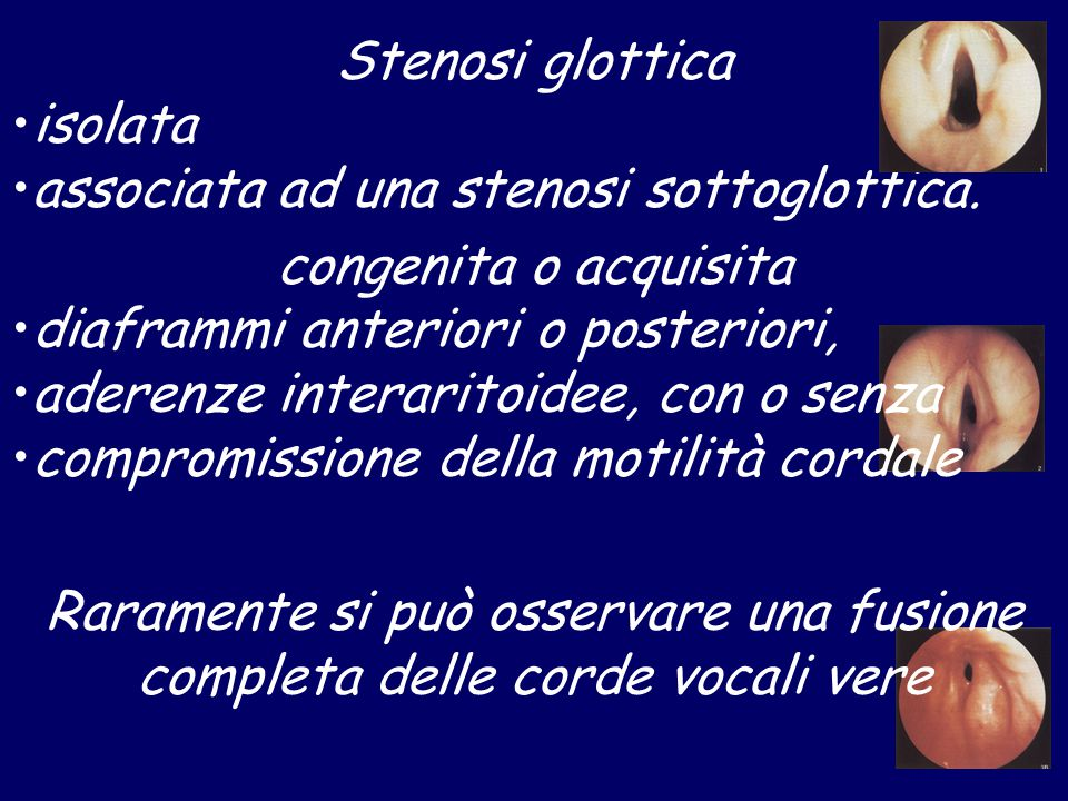 Stenosi glottica isolata. associata ad una stenosi sottoglottica. congenita o acquisita. diaframmi anteriori o posteriori,