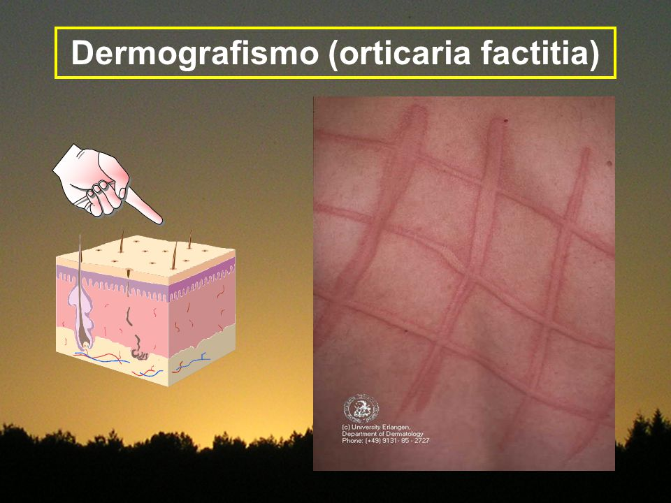 Dermografismo (orticaria factitia)