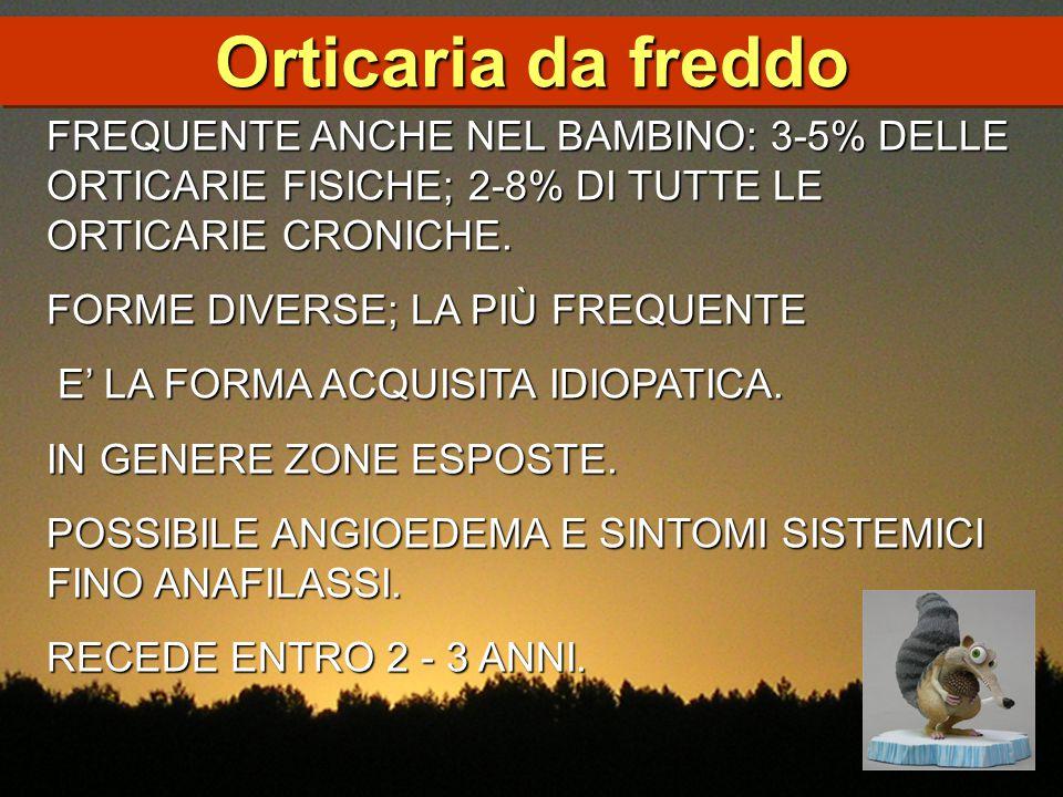 Orticaria da freddo FREQUENTE ANCHE NEL BAMBINO: 3-5% DELLE ORTICARIE FISICHE; 2-8% DI TUTTE LE ORTICARIE CRONICHE.