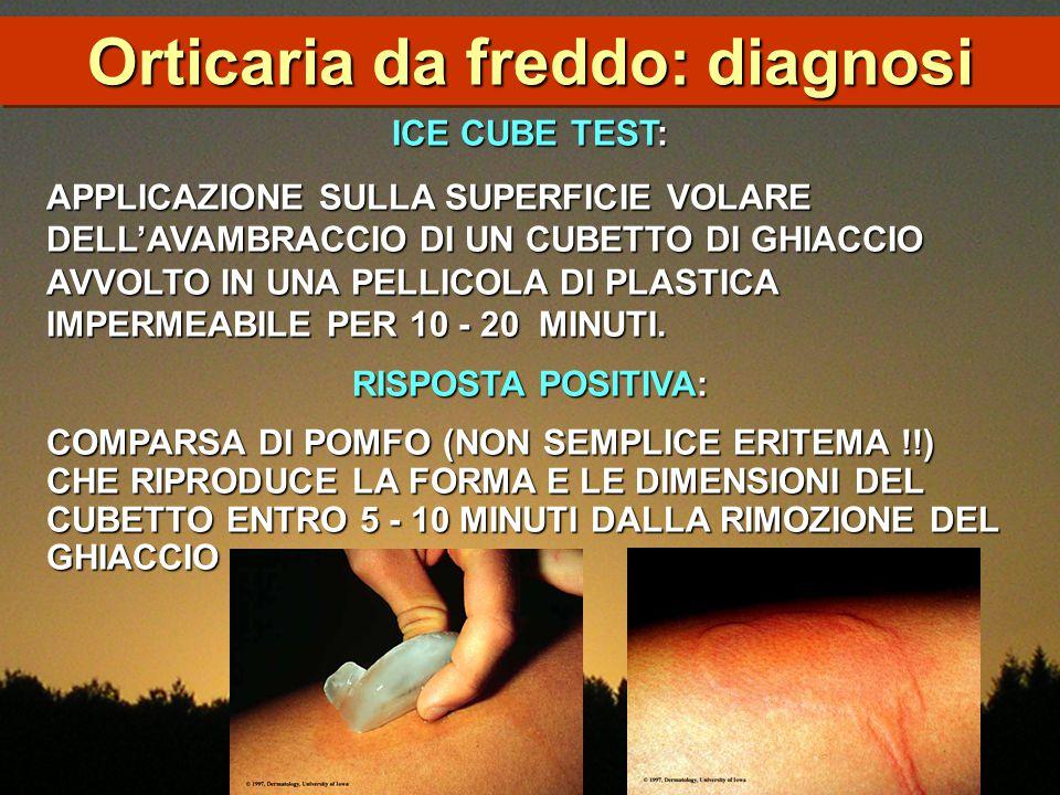 Orticaria da freddo: diagnosi