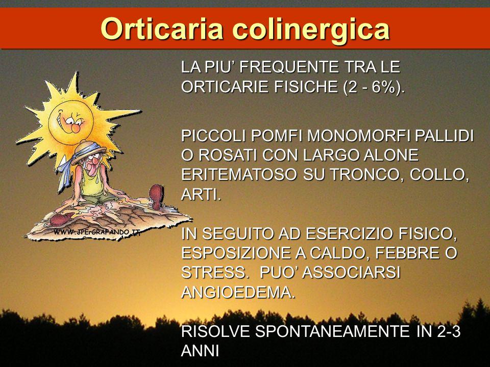 Orticaria colinergica