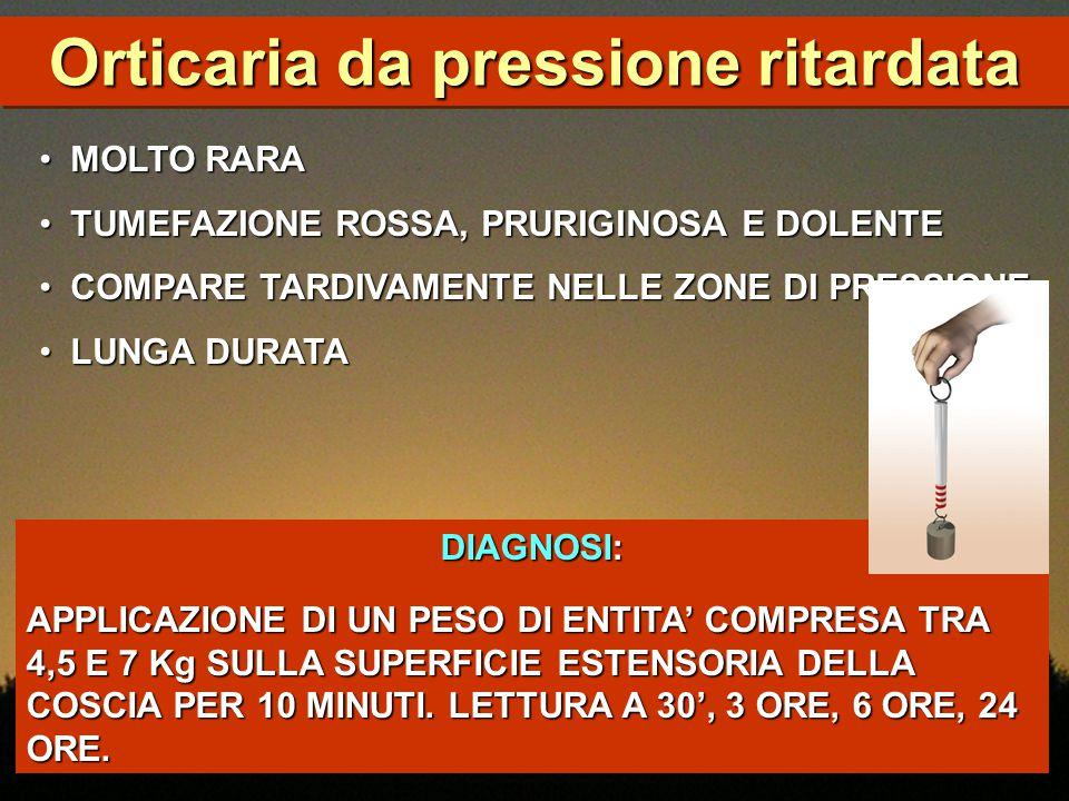 Orticaria da pressione ritardata