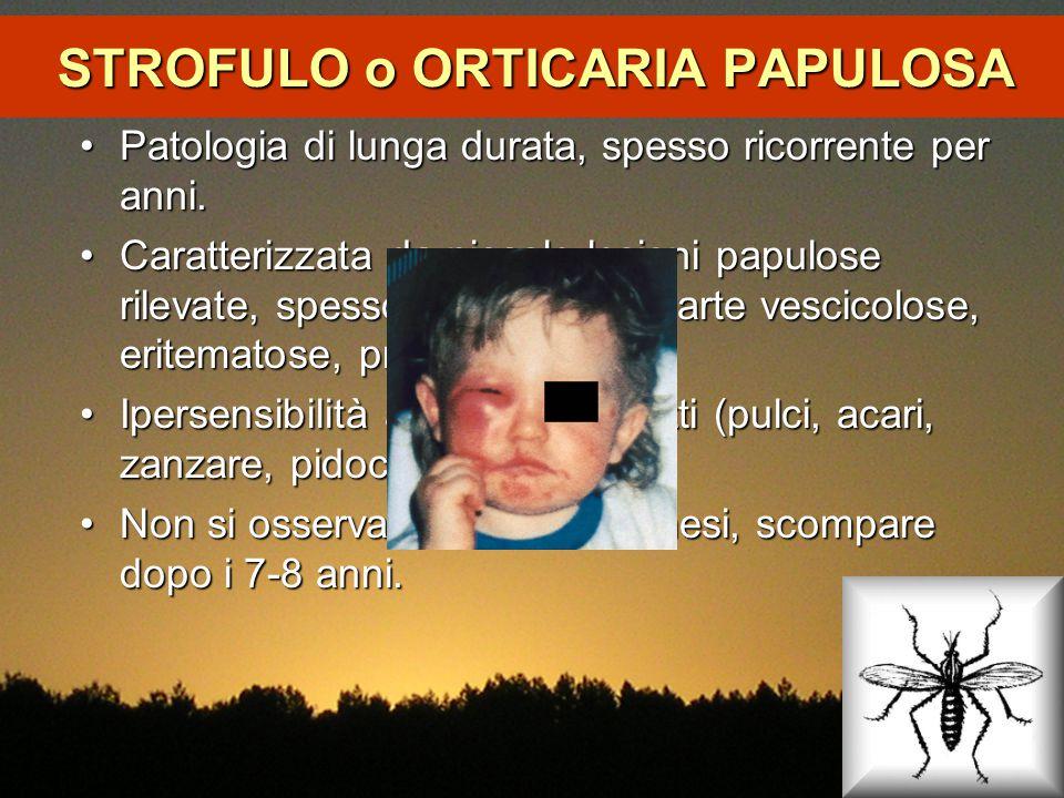 STROFULO o ORTICARIA PAPULOSA