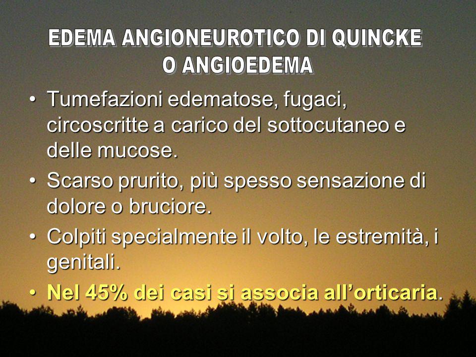 EDEMA ANGIONEUROTICO DI QUINCKE