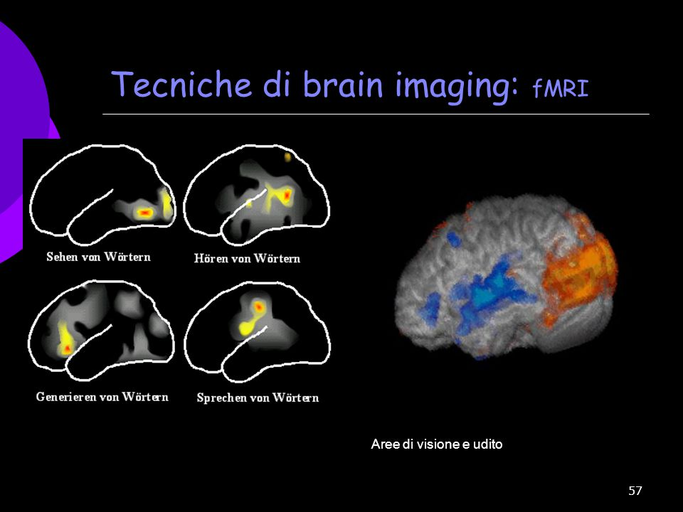 Tecniche di brain imaging: fMRI