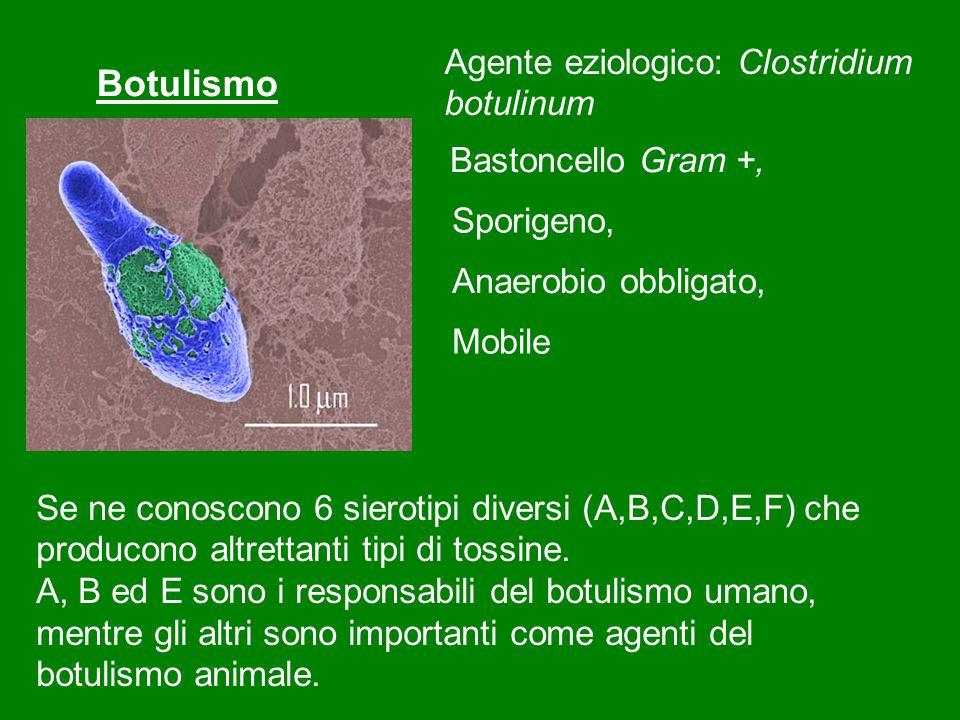 Botulismo Agente eziologico: Clostridium botulinum Bastoncello Gram +,