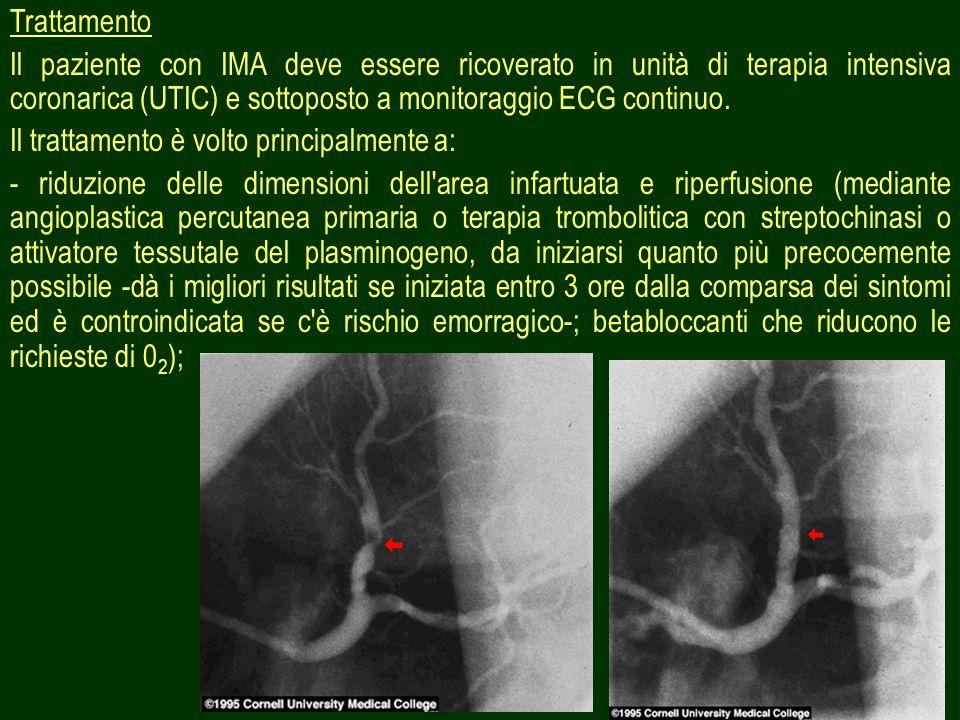 Trattamento Il paziente con IMA deve essere ricoverato in unità di terapia intensiva coronarica (UTIC) e sottoposto a monitoraggio ECG continuo.