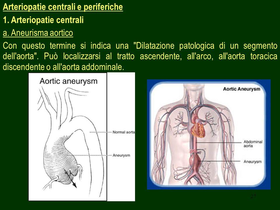 Arteriopatie centrali e periferiche