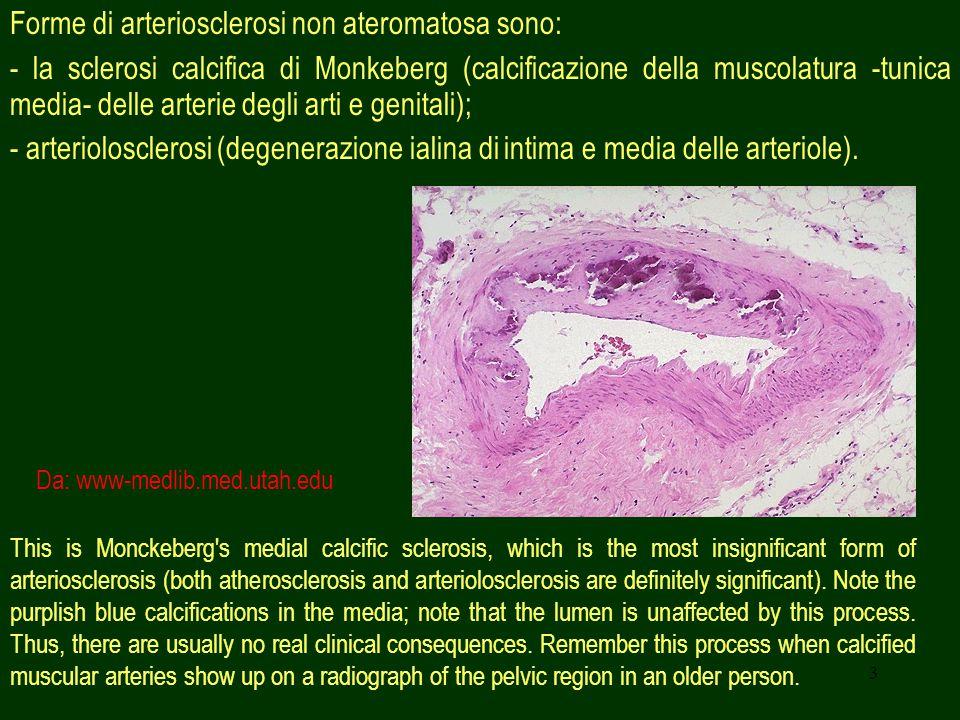 Forme di arteriosclerosi non ateromatosa sono: