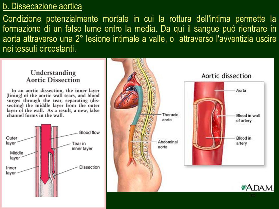 b. Dissecazione aortica