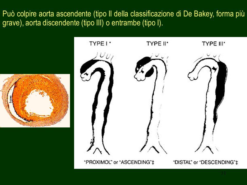 Può colpire aorta ascendente (tipo Il della classificazione di De Bakey, forma più grave), aorta discendente (tipo III) o entrambe (tipo I).