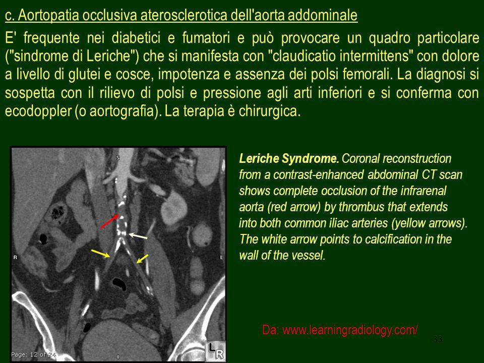 c. Aortopatia occlusiva aterosclerotica dell aorta addominale