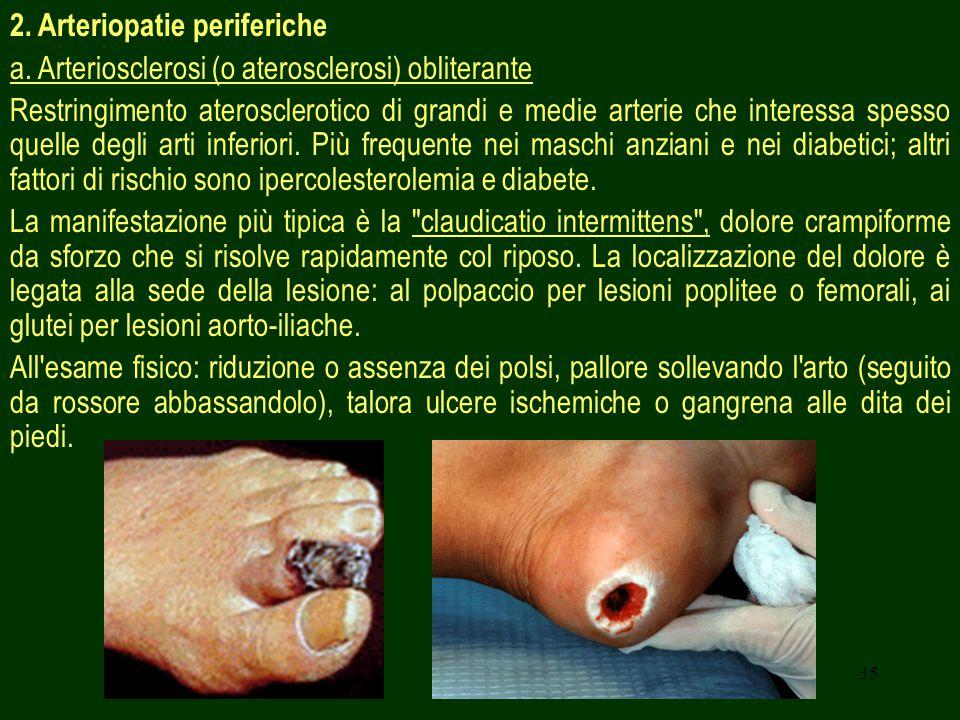 2. Arteriopatie periferiche