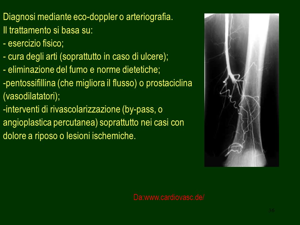 Diagnosi mediante eco-doppler o arteriografia.