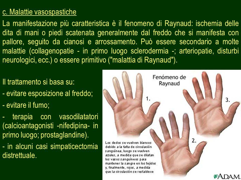 c. Malattie vasospastiche