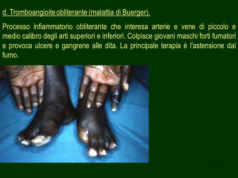 d. Tromboangioite obliterante (malattia di Buerger).