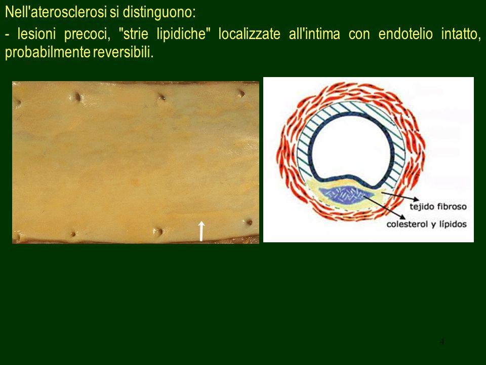 Nell aterosclerosi si distinguono: