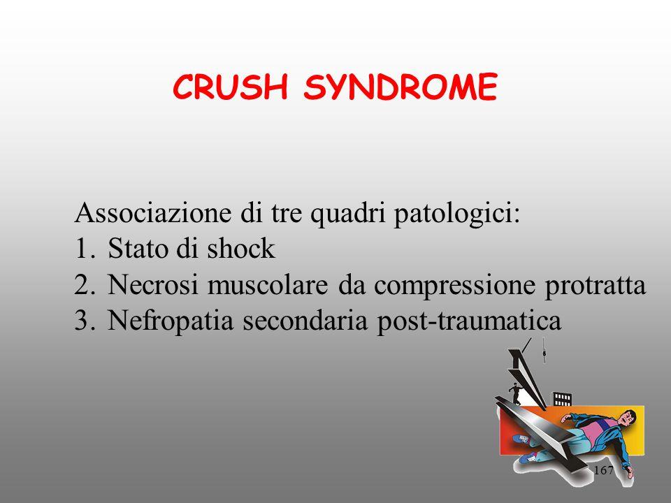CRUSH SYNDROME Associazione di tre quadri patologici: Stato di shock