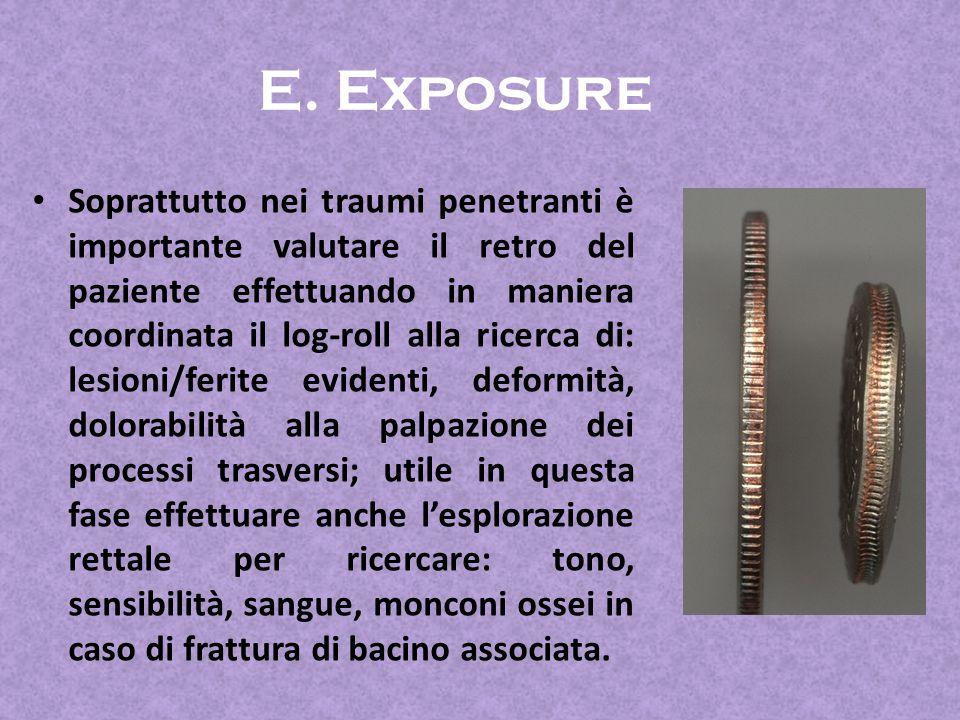 E. Exposure
