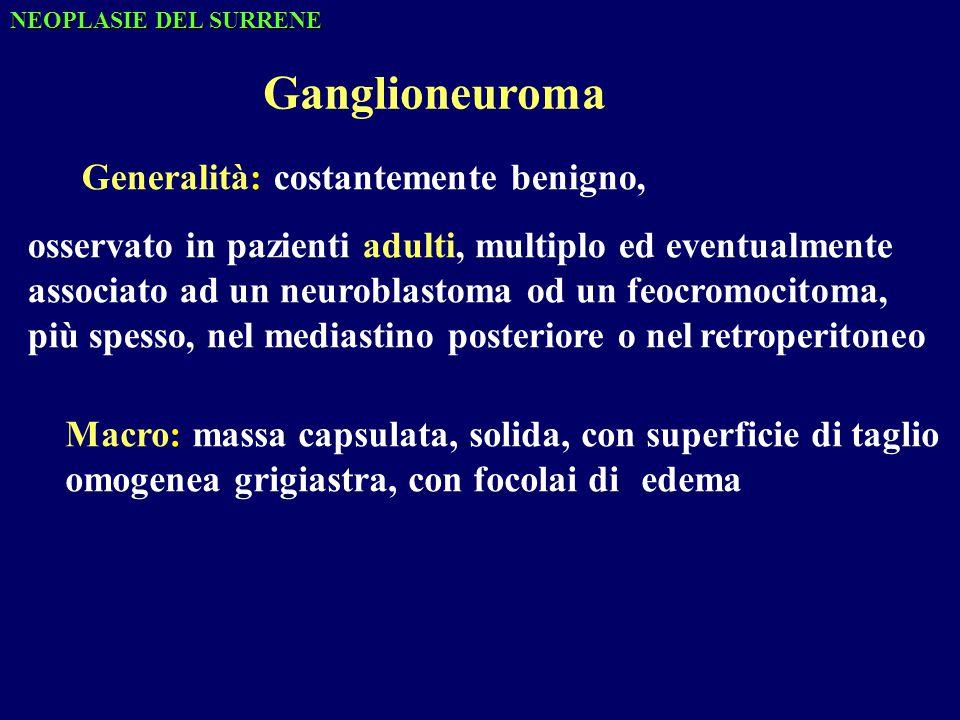 Ganglioneuroma Generalità: costantemente benigno,