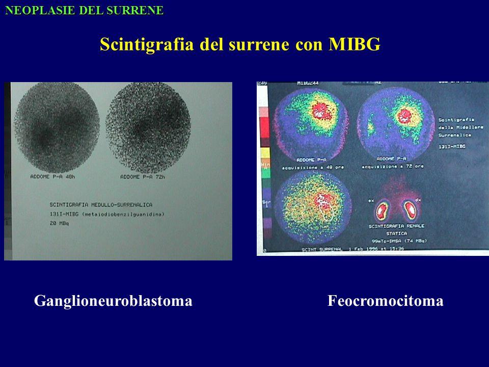Scintigrafia del surrene con MIBG