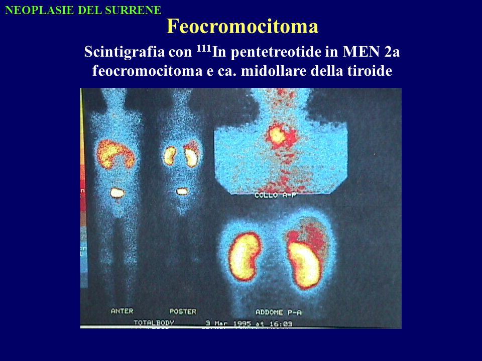 Feocromocitoma Scintigrafia con 111In pentetreotide in MEN 2a