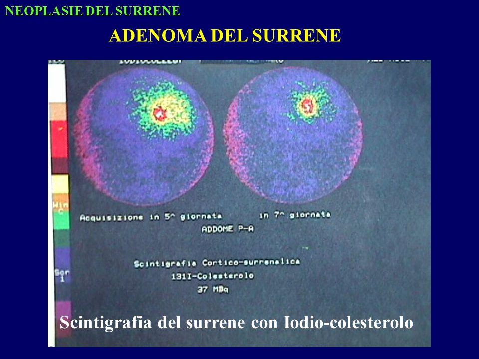 Scintigrafia del surrene con Iodio-colesterolo