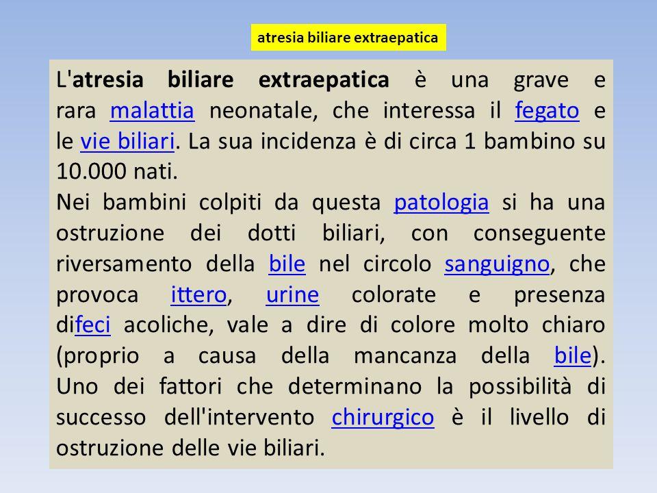 atresia biliare extraepatica