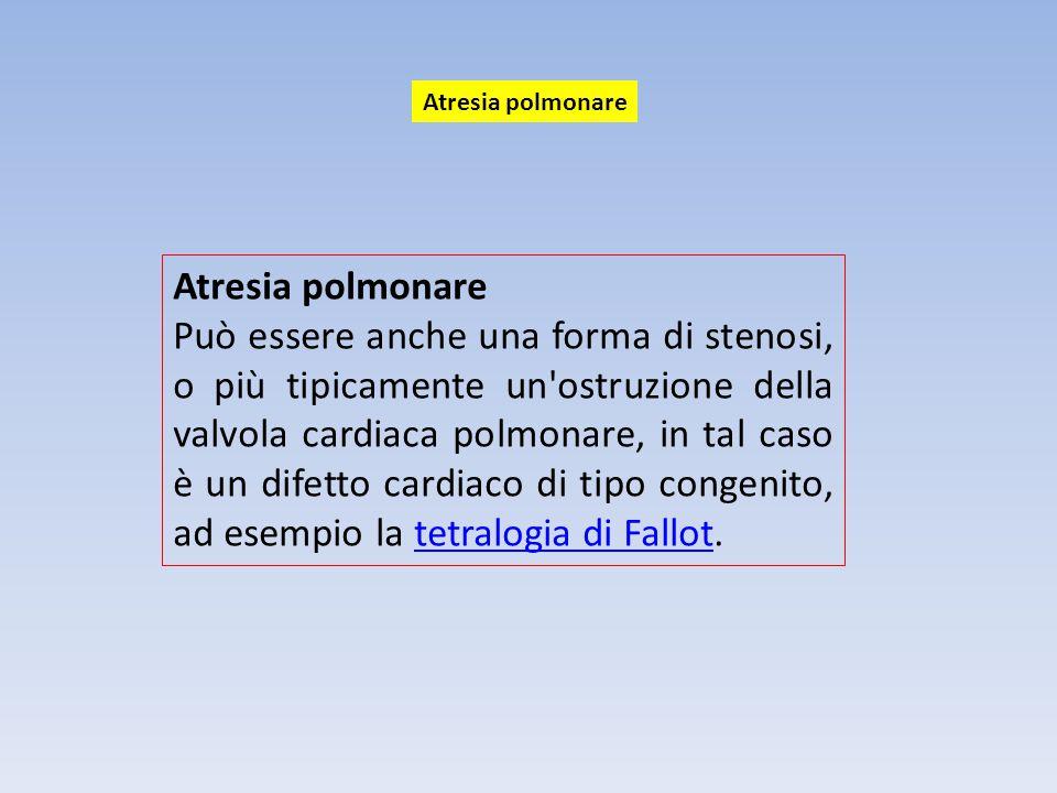 Atresia polmonare Atresia polmonare.