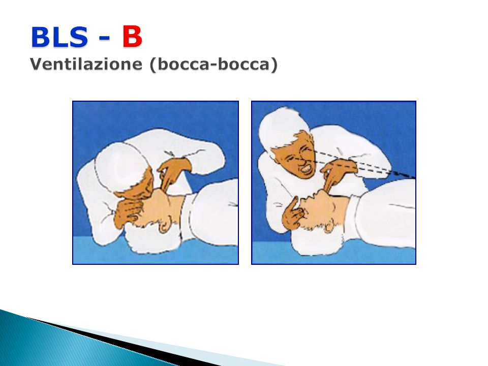 BLS - B Ventilazione (bocca-bocca)