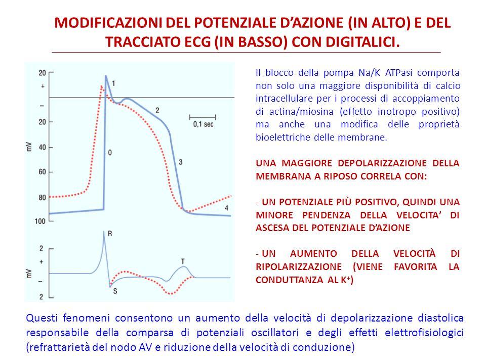 Modificazioni del potenziale d'azione (in alto) e del tracciato ECG (in basso) con digitalici.