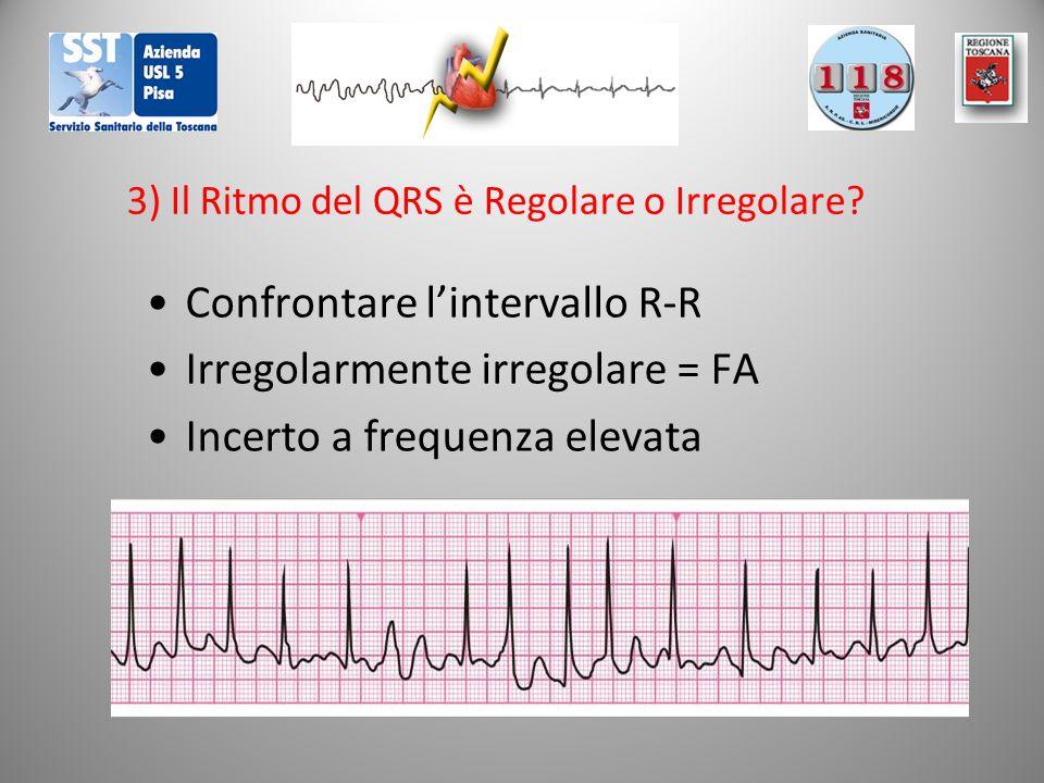 3) Il Ritmo del QRS è Regolare o Irregolare