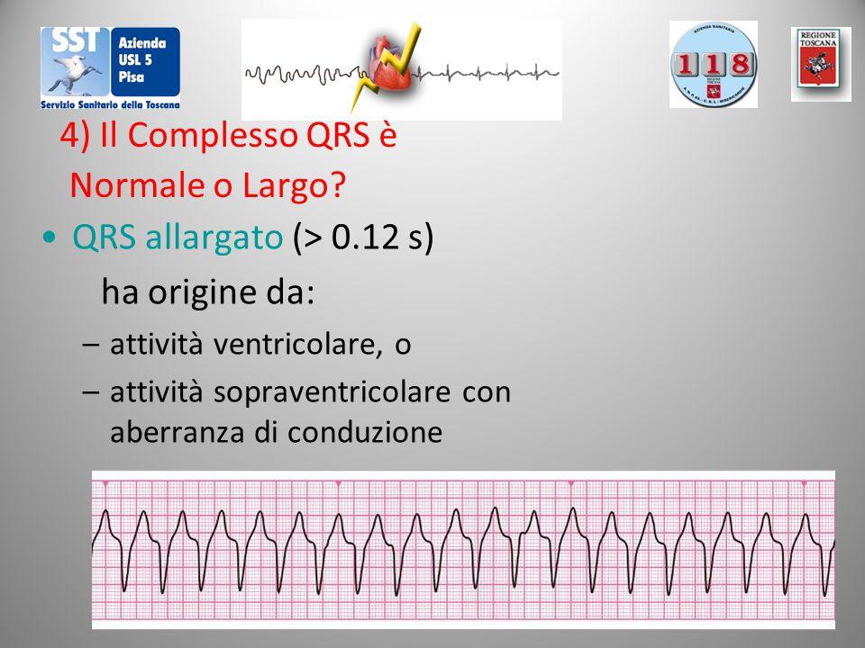 4) Il Complesso QRS è Normale o Largo