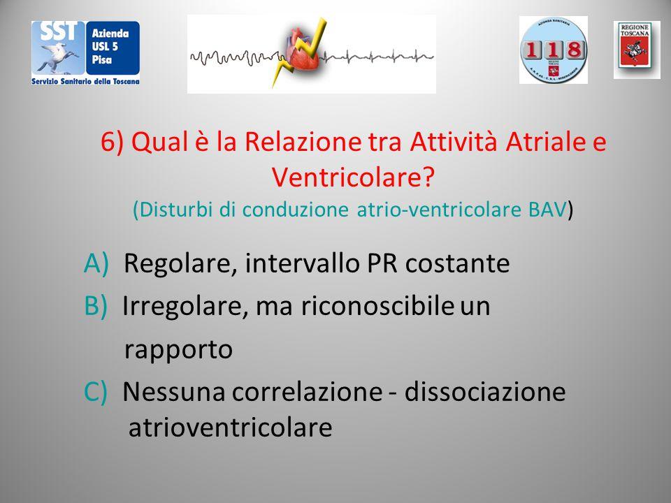 6) Qual è la Relazione tra Attività Atriale e Ventricolare