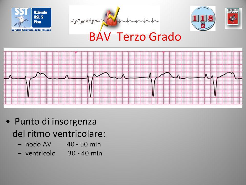 BAV Terzo Grado Punto di insorgenza del ritmo ventricolare: