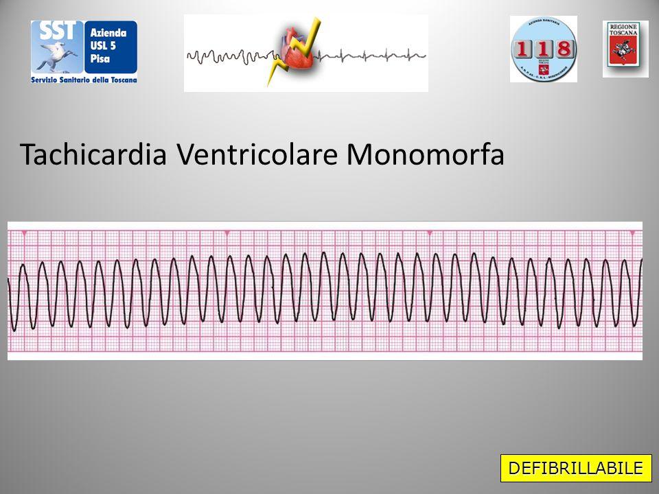 Tachicardia Ventricolare Monomorfa