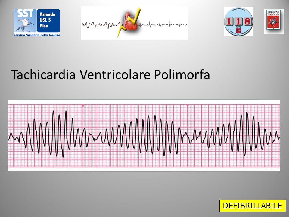 Tachicardia Ventricolare Polimorfa