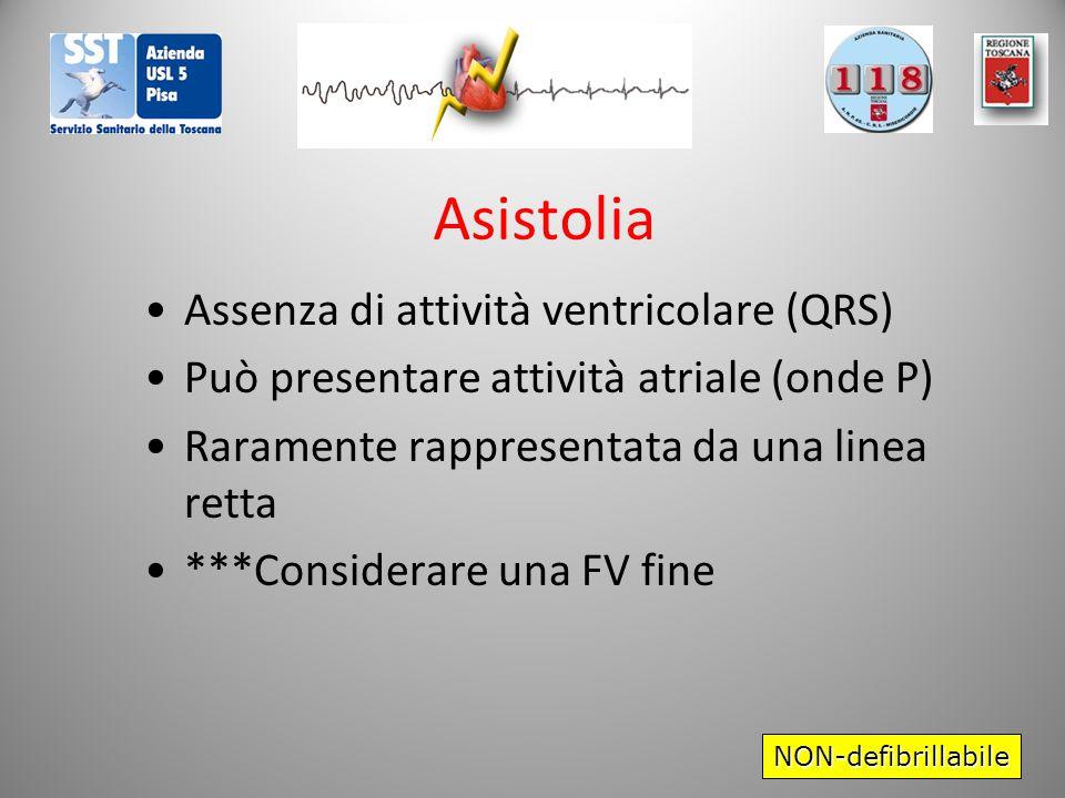 Asistolia Assenza di attività ventricolare (QRS)