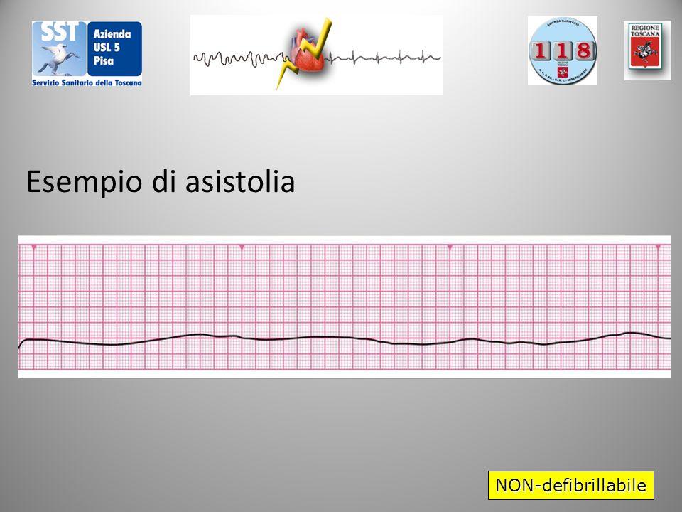 Esempio di asistolia NON-defibrillabile