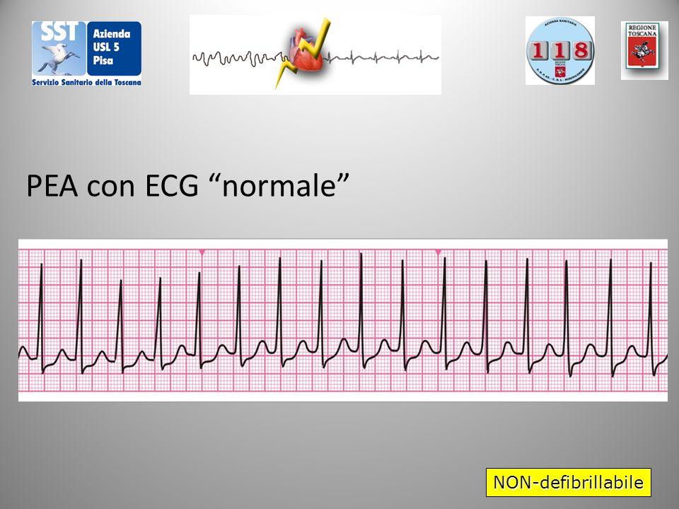 PEA con ECG normale NON-defibrillabile