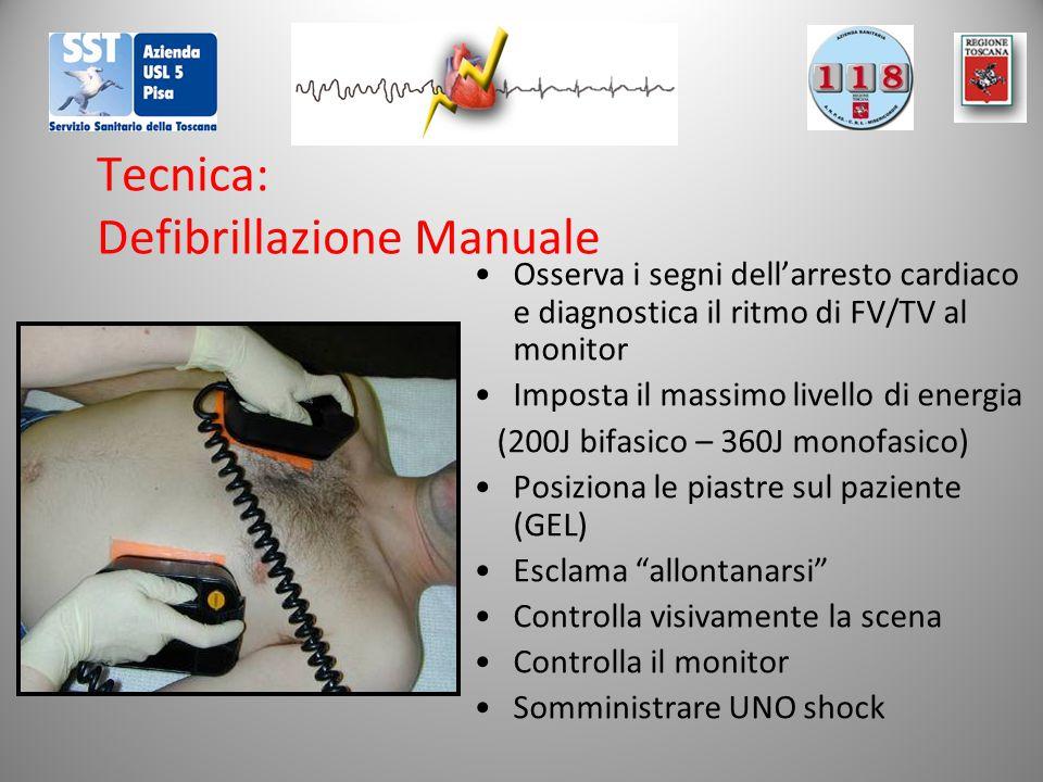 Tecnica: Defibrillazione Manuale