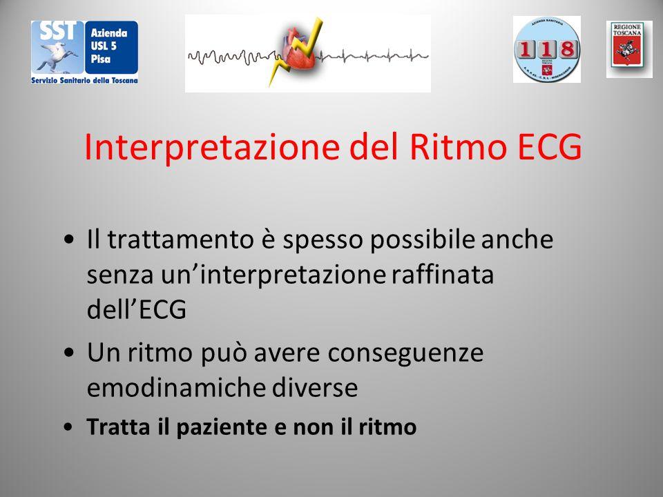 Interpretazione del Ritmo ECG